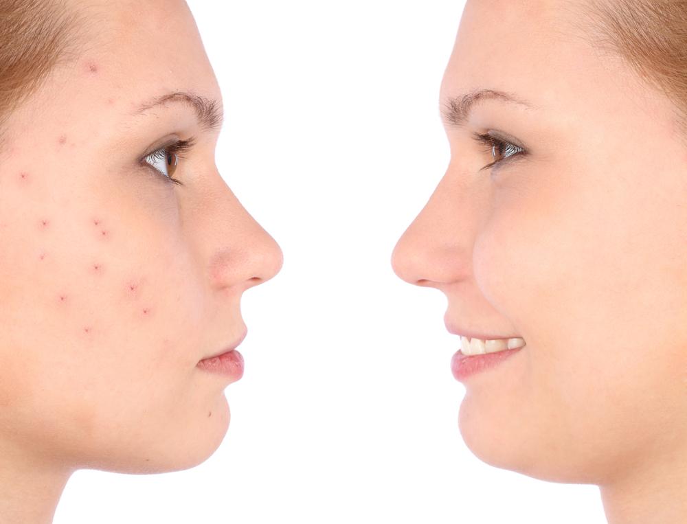 Kosmetyki naturalne do pielęgnacji skóry trądzikowej